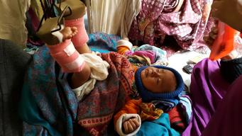 4-month old baby treated for injury in UNICEF-supported Jorpati Hospital
